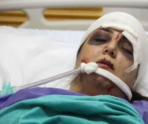 باران کوثری با صورتی کبود روی تخت بیمارستان
