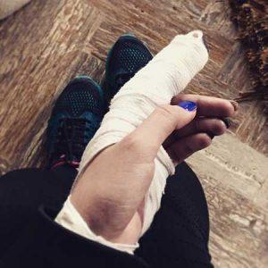انگشت پریناز ایزدیار در گچ