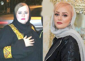 عکس قبل و بعد نعیمه نظام دوست بعد از لاغری