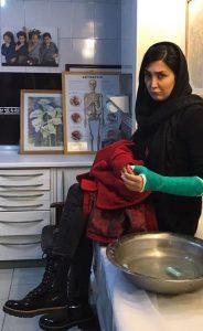 چهره ی ناراحت مریم معصومی بعد از گچ گرفتگن دستش در بیمارستان