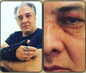 صورت زخمی ایرج نوذری و دست اسیب دیده ی وی طی یک حادثه