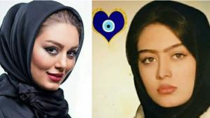عکس قبل و بعد از عمل سحر قریشی