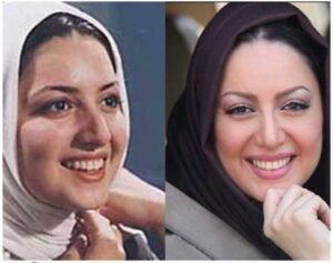 عکس قبل و بعد از عمل شیلا خداداد