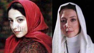 عکس قبل و بعد از عمل سحر جعفری جوزانی