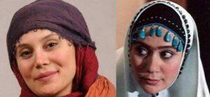 عکس قبل و بعد از عمل آرام جعفری