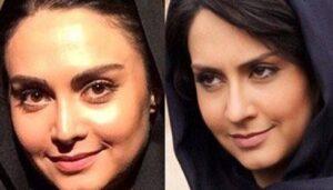 عکس قبل و بعد از عمل مریم خدارحمی