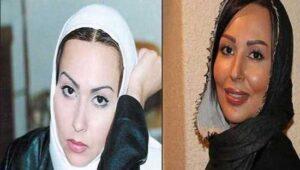 عکس قبل و بعد از عمل پرستو صالحی