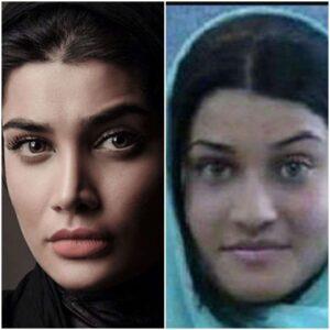 عکس قبل و بعد از عمل تینا آخوندتبار