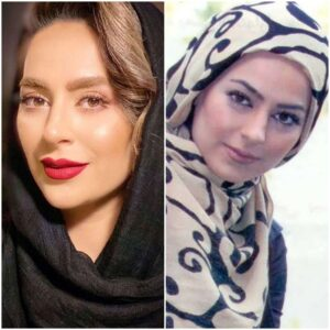 عکس قبل و بعد از عمل سمانه پاکدل
