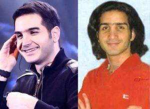 عکس قبل و بعد از عمل محسن یگانه