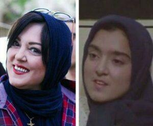 عکس قبل و بعد از عمل پرستو گلستانی