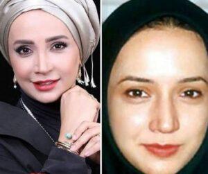 عکس قبل و بعد از عمل شبنم قلی خوانی