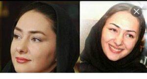 عکس قبل و بعد از عمل هانیه توسلی