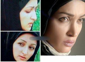 عکس قبل و بعد از عمل روناک یونسی