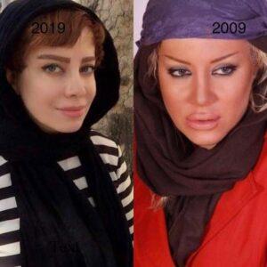 عکس قبل و بعد از عمل شراره رخام