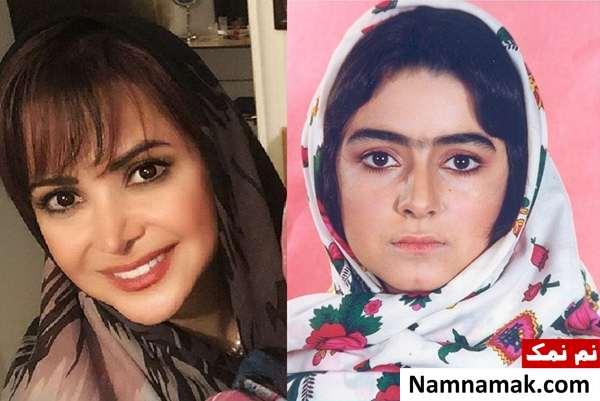 کمند امیرسلیمانی قبل و بعد از عمل زیبایی - عمل زیبایی کمند امیرسلیمانی