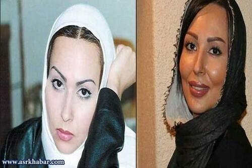پرستو صالحی قبل از عمل بینی با شال سفید و پرستو صالحی بعد از عمل بینی با شال مشکی