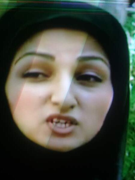 قبل عمل زیبایی روناک یونسی