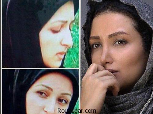 روناک یونسی قبل از عمل بینی - عمل زیبایی روناک یونسی