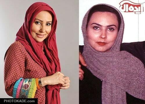 پرستو صالحی قبل با شال بنفش و پرستو صالحی با شال قرمز -عمل زیبایی پرستو صالحی