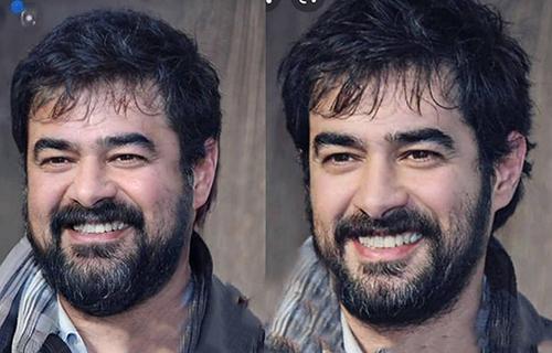 شهاب حسینی با صورت چاق و صورت لاغر