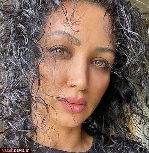 روناک یونسی با موهای فر - عمل زیبایی روناک یونسی