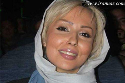 پرستو صالحی با موی بلوند و شال سفید - عمل زیبایی پرستو صالحی