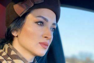 روناک یونسی با کلاه در ماشین - عمل زیبایی روناک یونسی